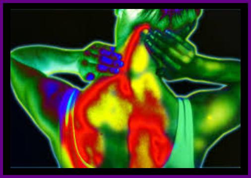 Fascia muscle tendu